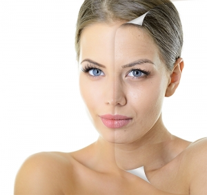 Lifestyle Plus Science blog. Aging and the skin.