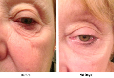 NeoGenesis Eye Serum - Before and After