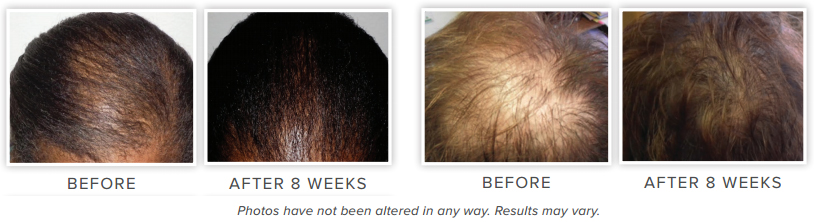 Reviews - NeoGenesis Hair Thickening Serum - for Hair Loss