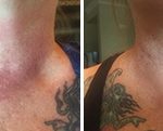 NeoGenesis Recovery for faster healing of Chemical Peels