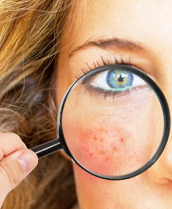 Rosacea - Living with and treating Rosacea
