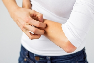 Eczema - Using NeoGenesis Recovery on a daily basis will help with the Eczema rash, inflammation, and itching, and help to break the itch-scratch cycle
