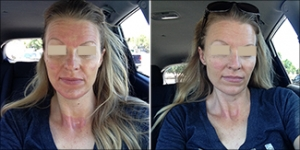 Recovery Reviews - Recovery skin serum for Collagen Induction Therapy