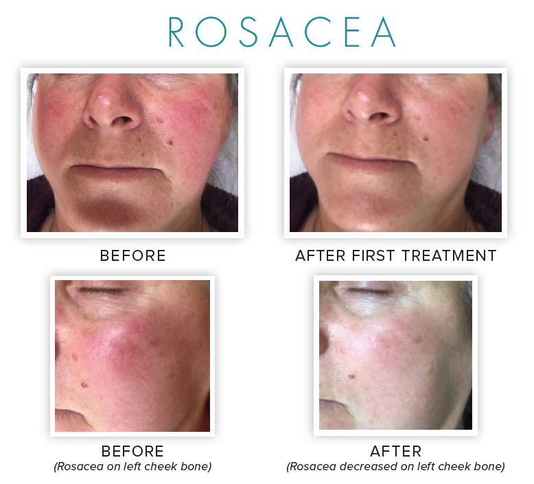 Rosacea -before and after using NeoGenesis skincare products