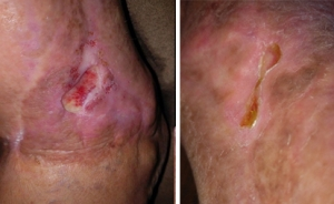 Wound Healing - NeoGenesis Recovery for Wound Healing Review