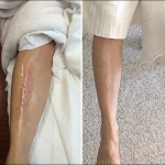 Reviews - NeoGenesis Recovery skin serum for wounds and scarring