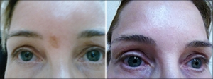 Fraxel Laser scar before and after photos from NeoGenesis customer