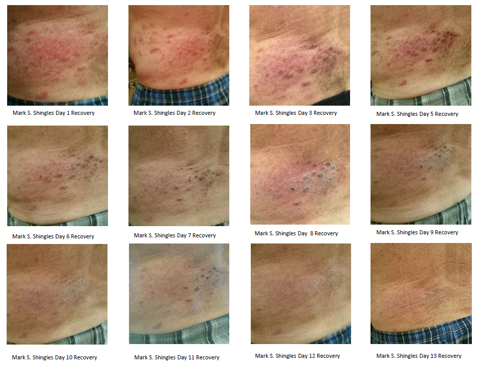 Product Review Neogenesis Recovery Serum For Shingles