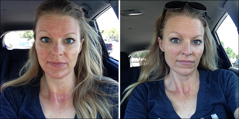 Esthetician Review - NeoGenesis Recovery for Collagen Induction Therapy - CIT reviews