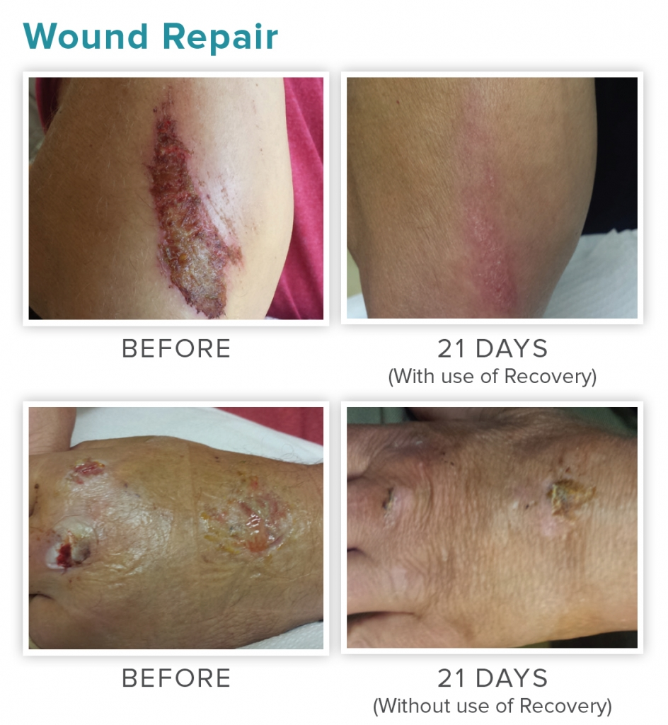 Wound care review. NeoGenesis Recovery for wound care healing and scarring