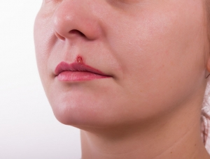 49866888 - girl lip diseased herpes. scabs on the stage of drying