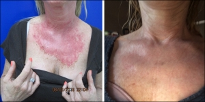 Radiation Dermatitis Neogenesis Skincare After Radiation Oncology Safe