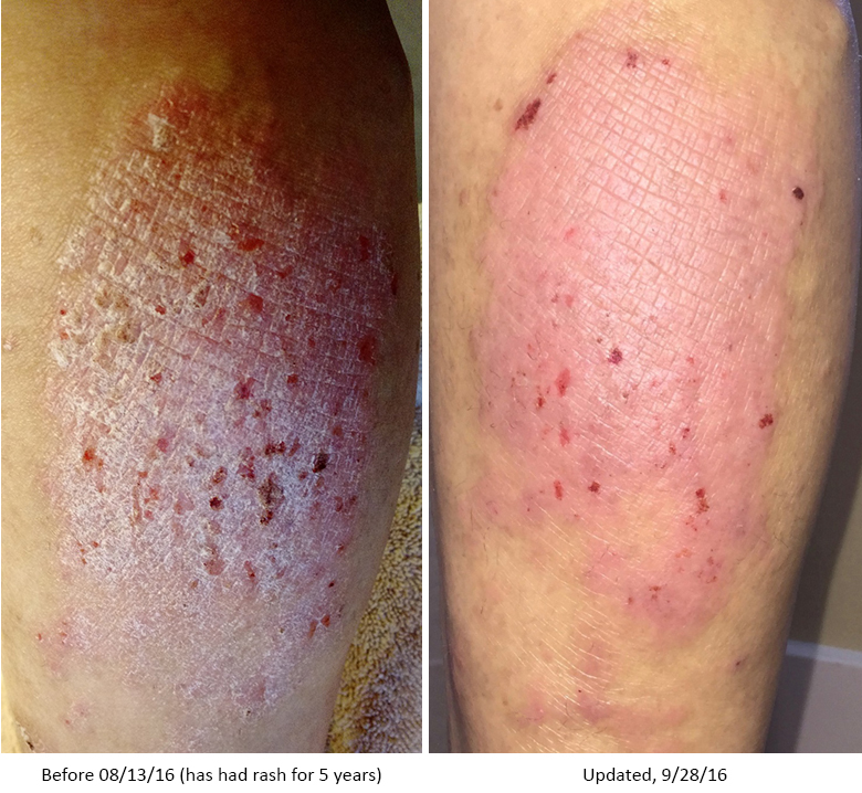 Dermatitis - Before and After NeoGenesis Recovery