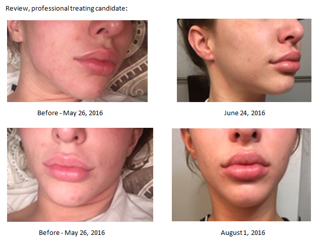 Review - NeoGenesis Recovery for Acne