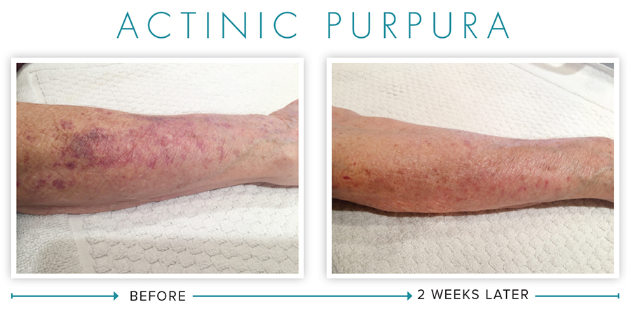 Actinic Purpura - Before and After photos - NeoGenesis Skincare Products